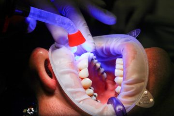 Expensive teeth treatments you can avoid